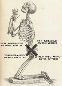 If you are one of the tens of millions of Americans struggling with low back pain, pelvis issues, or sciatica, it's critical for you to learn about Lower Crossed Syndrome. Chronic Lower Back Pain, Hip Pain, Low Back Pain, Knee Pain, Posture Exercises, Sciatica Stretches, Hip Stretches, Muscle Imbalance, Spine Health