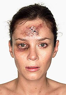 1000+ images about Blunt Force Trauma on Pinterest ...