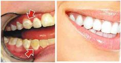 Top Oral Health Advice To Keep Your Teeth Healthy. The smile on your face is what people first notice about you, so caring for your teeth is very important. Unluckily, picking the best dental care tips migh Tartar Removal, Plaque Removal, Tooth Sensitivity, Best Teeth Whitening, Healthy Teeth, Healthy Food, Oral Hygiene, Oral Health, News Health