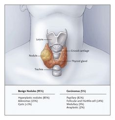Endocrine Surgery: Thyroid Surgery