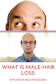 What is male hair loss (male pattern baldness/androgenic alopecia)? - Health To Us hair loss men Losing Hair Women, Hair Loss Women, Stop Hair Loss, Prevent Hair Loss, Essential Oil For Men, Hair Loss Medication, Thin Hair Styles For Women, Male Pattern Baldness, Hair Growth Tips