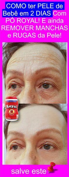 Remover Manchas, Belleza Natural, Aloe Vera, Natural Remedies, Hair Beauty, How To Remove, Humor, Makeup, Face