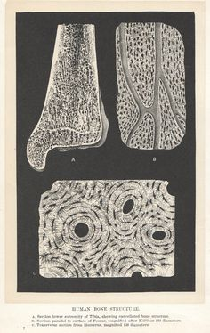 structure of human bones, 1880s print, osteons; canaliculi, lacunae, Haversian canals
