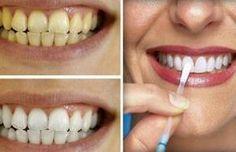 Recupera tu sonrisa utilizando vinagre