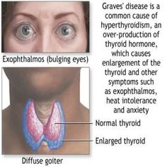 Home Remedies For Graves Disease