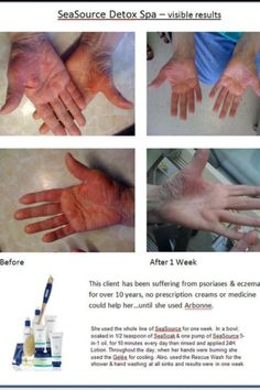 The healing results of Arbonne!! Ask me how you can save 20% 40% or 80% off!! srcjtalbot@hotmail.com