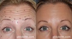 Before & after Botox photos show how our dermatologists bring patients natural results through customized Botox and Dysport injections.