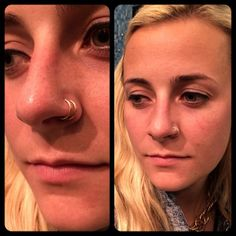 Double nostril piercing with gold rings. E-mail Braindrops.sf@gmail.com with questions. #jewelry #bodyjewelry #braindrops #gold