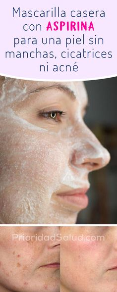 tips are offered on our website. look at th s and you will not be sorr… - Cosas Que Debes Saber Para Una Piel Sana Beauty Secrets, Beauty Hacks, Beauty Tips, Beauty Care, Skin Tag Removal, Pink Lipsticks, Dandruff, How To Apply Makeup, Pimples