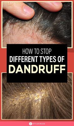 Itchy Dry Scalp Remedy, Itchy Flaky Scalp, Home Remedies For Dandruff, Hair Remedies, Health Remedies, How To Prevent Dandruff, Itchy Scalp Causes, Beauty, Tips