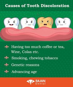 Your teeth can become discolored due to stains on the surface or changes in the tooth. There are four main types of tooth discoloration care # Oral hygiene Teeth Health, Oral Health, Dental Health, Dental Care, Dental Kids, Healthy Teeth, Dental Quotes, Dental Facts, Dental Humour