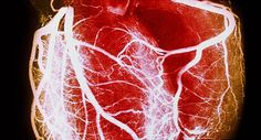 WebMD provides a visual overview of heart disease including symptoms to watch for diagnostic tests treatments and prevention strategies. Calcium Deposits, Magnesium Supplements, Magnesium Deficiency, Lower Blood Pressure, Bone Health, Vitamin D, Health Tips