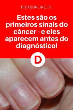 Sintomas de câncer   Um desses sinais é nas unhas. Saiba tudo sobre ele e os outros. Leia ↓ ↓ ↓