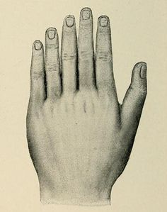 Supernumerary fingers, from Edward J. Farnum's Deformities, a text book on orthopedic surgery, 1898
