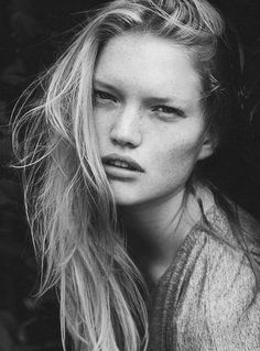 Freckles are gorgeous