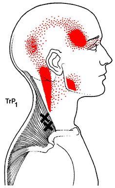 Les points gâchettes ou noeuds de muscles irradient de nombreuses autres zones.