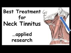 Best Treatment for Neck-Tinnitus -- Somatic-type Tricyclic Antidepressant, Tinnitus Symptoms, Neck Exercises, Trigger Point Therapy, Randomized Controlled Trial, Vagus Nerve, Cognitive Behavioral Therapy, Alternative Treatments, Trigger Points