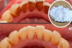 Video shows 3 best ways to remove teeth plaque or tartar at home without visiting a dentist for your dental cleaning. Remedies For Strong and White Teeth: ht. Make Teeth Whiter, Dental Care, Teeth Care, White Teeth, Teeth Cleaning, Teeth Whitening, Baking Soda, Health And Beauty, Natural Treatments
