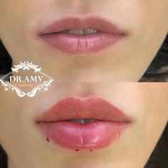 Facial Fillers, Dermal Fillers, Lip Fillers, Botox Fillers, Natural Lip Plumper, Natural Lips, Relleno Facial, Botox Lips, Aesthetic Dermatology