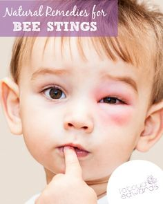 With spring in the air the bees are out and about. Do you know what to do if your baby boy or baby girl gets stung? Here are a few natural bee stings remedies that I've used with my children (also works for wasp stings)!