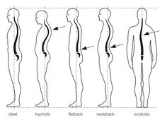 scoliosis is a sideways curve of the spine which has