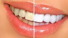 Détartrage des dents maison : Recette grand mère à base du vinaigre blanc et du citron | La beauté naturelle