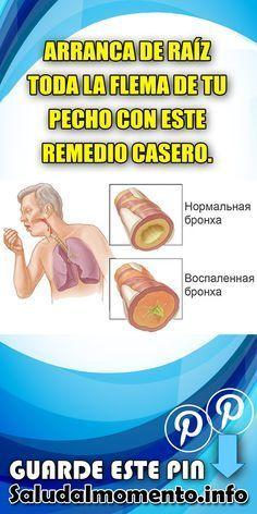 ARRANCA DE RAÍZ TODA LA FLEMA DE TU PECHO CON ESTE REMEDIO CASERO. #CASERO #FLEMA #PECHO