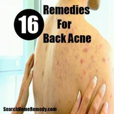 Search Home Remedy - http://www.searchhomeremedy.com/home-remedies-for-back-acne/
