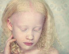 Sin pigmento: fotografías de la belleza albina