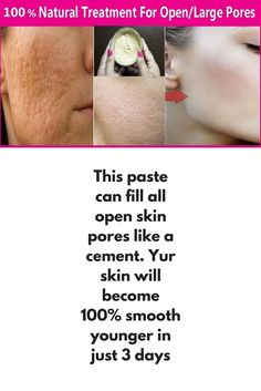 This paste can fill all open skin pores like a cement. Yur skin will become 100% smooth younger in just 3 days 100% natural & Effective Home Remedy for Open Pores / large Pores which is help to get smooth younger &...