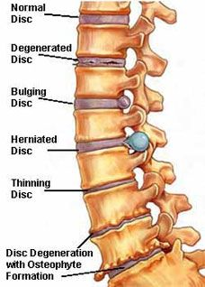What Is Straightening of the Normal Cervical Lordosis  Can It     Chiro Org