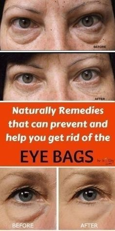 Here Is How To Get Rid Of Stubborn Eye Bags With Essential Oil And Aloe Vera