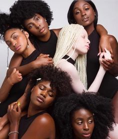 Black girls magic / Beauty of Albinism Black Girls Rock, Black Girl Magic, My Black Is Beautiful, Beautiful People, Beautiful Women, Black Girl Aesthetic, Brown Skin Girls, We Are The World, Black Women Art