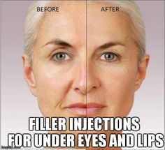 #Filler Injections for Under Eyes and Lips