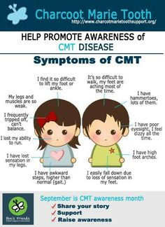 """SOME"" of the more common effects of Charcot Marie Tooth. (CMT ain't just a country western station)"