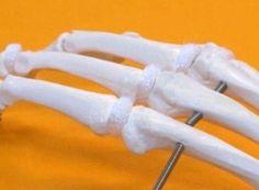 How Pain Affects Your Body - Osteoarthritis Center - Everyday Health Fibromyalgia Pain, Chronic Pain, Chronic Fatigue Syndrome, Chronic Illness, Psychological Stress, Spinal Stenosis, Ankylosing Spondylitis, Psoriatic Arthritis, Crps