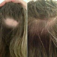 Hair Scalp, Hair Serum, Hair Shampoo, Ageloc Galvanic Spa, Beauty Secrets, Overprocessed Hair, Protein Blend, Nu Skin, Fuller Hair