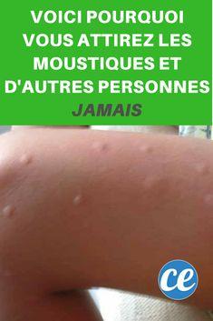 Voici Pourquoi Vous Attirez les Moustiques et d'Autres Personnes JAMAIS.