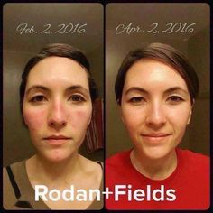 "Meet Ivy - she has struggled with acne and redness for a long time. She was introduced to the Rodan + Fields UNBLEMISH regimen. Check out what she had to say after using this regimen for 60 days...  ""I was on the verge of crying in the first picture. I hated how I looked without makeup (and usually with it.) My confidence has skyrocketed and that's priceless.""  Rodan + Fields is the #1 Premium Acne Skincare product in the U.S. for a reason - it works! #rodanandfields #byebyeacne"