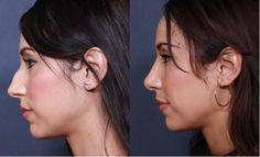 We are the highest rated nose surgeons in Ann Arbor Michigan specializing in rhinoplasty surgery and nose correction and revision surgery. Our patients come from all over the United States and Canada. We offer no cost and no obligation before and after 3D consultations. http://rhinoplastymichigan.net/ann-arbor
