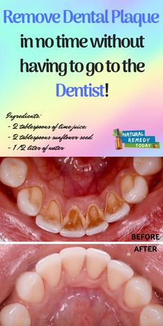 Remove dental plaque in no time without having to go to the dentist! Remove dental plaque in no time without having to go to the dentist! Teeth Health, Dental Health, Oral Health, Dental Care, Healthy Teeth, Healthy Eating, Plaque Removal At Home, Plaque Removal Teeth, Receding Gums