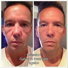 Galvanic Body Spa Galvanic Spa How To Properly Care For Furniture Most of us sp Anti Aging Treatments, Galvanic Facial, Galvanic Body Spa, Best Anti Aging, Anti Aging Skin Care, Nu Skin, Beauty