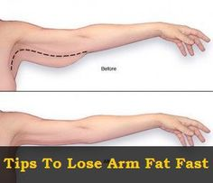Tips To Lose Arm Fat Fast some good info but remember it takes time and you can't spot reduce body fat | Health Lala