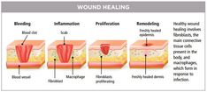 Wound Healing Center at Inova Loudoun treats complex wound and ostomy cases Wound Dressing, Scrub Life, Wound Care, Body Organs, Wound Healing, Primary Care, Blood Vessels, Medicine, Things To Come