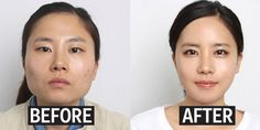 Why Korean parents are having their kids get plastic surgery before college