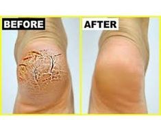 Grandma Told Me This Trick. It Healed My Cracked Heels In Just 1 Night (Grandma Told Me This Trick. It Healed My Cracked Heels In Just 1 Night) Here you can Healthy Tips, Healthy Skin, Healthy Food, Heal Cracked Heels, Cracked Feet, Tips Belleza, Feet Care, Skin Care Tips, Baking Soda