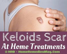 Formation of keloid takes time and it is not an overnight health condition. Abnormal growth of fibrous tissues under the keloid scars makes it look ugly and bumpy. They are painless and sometimes people have it from their birth(often considered as birth mark). Keloid removal cost can vary from 95 dollars to 5,000 dollars. It …
