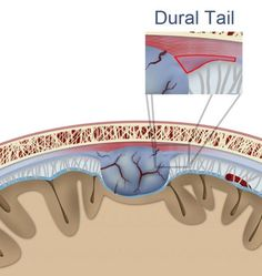 The dural tail sign occurs as a result of thickening of the dura and, in the majority of cases, is associated with meningioma formation. It was initially thought to result from direct invasion of the dura, however subsequent studies demonstrated it to be more a reactive process.   http://radiopaedia.org/articles/dural-tail-sign-1
