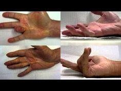 The Spectrum of Dupuytren Disease Dupuytren's Contracture, Tremors Hand, Health And Wellness, Health Fitness, Hand Wrist, Crps, Massage Therapy, Autoimmune, Arthritis