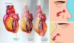 Dangerous Signs Of Kidney Failure Most People Ignore